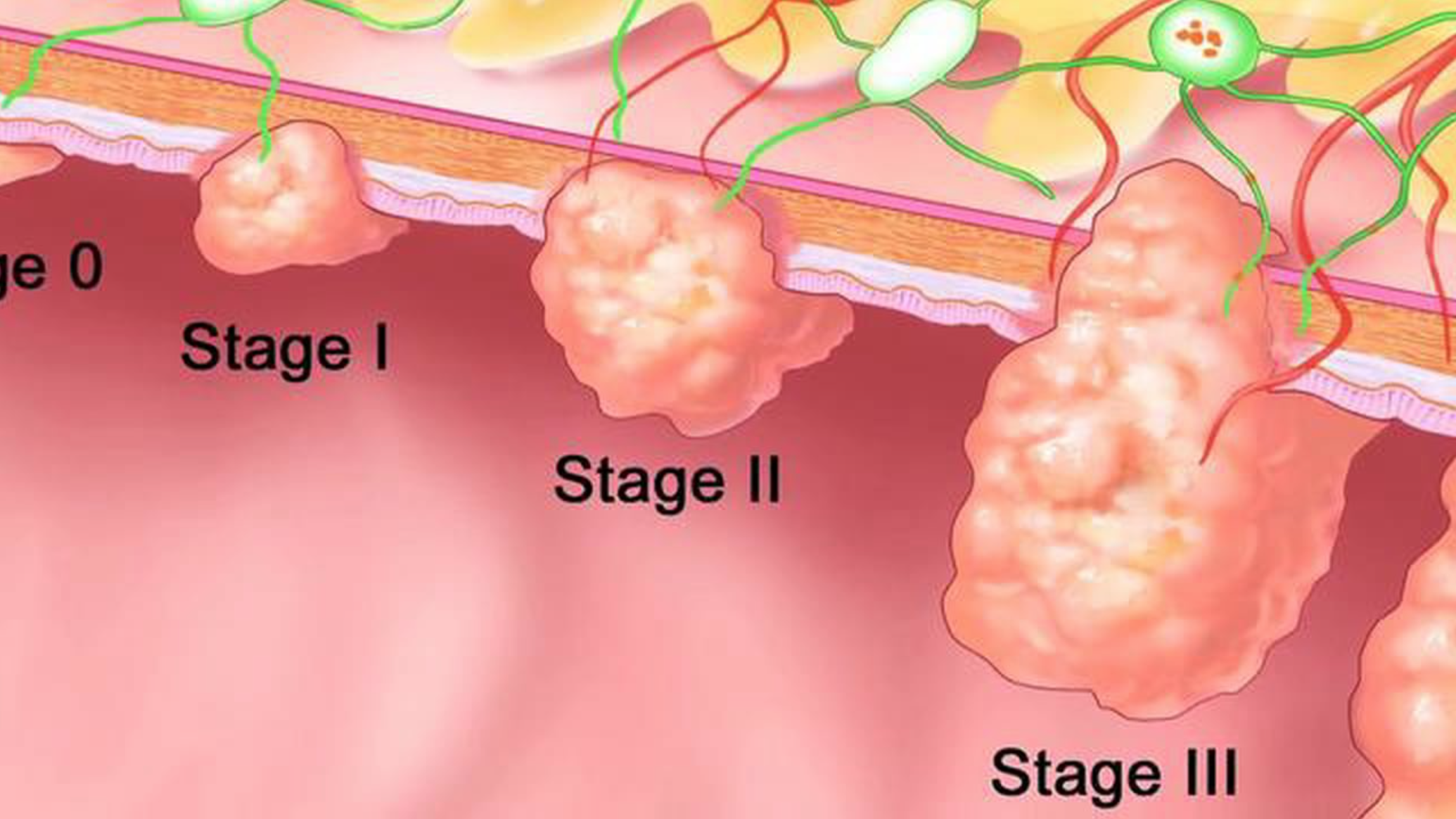 5 Tips To Finding Reliable Colon Health Information When You Need It