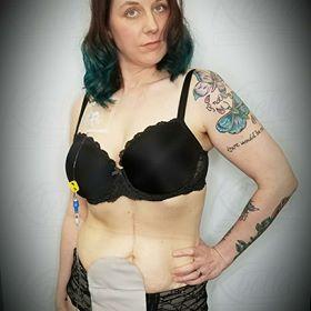 Megan showing off ostomy